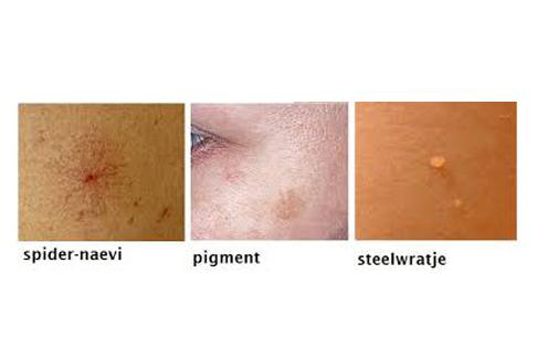 coagulatie is geschikt voor steelwratjes, pigmentvlekken en couperose